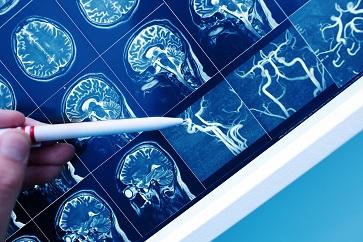 Alterações genéticas podem indicar maior risco de Alzheimer, diz estudo