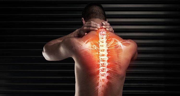 Síndrome da medula espinhal ancorada (medula presa ou ancorada)