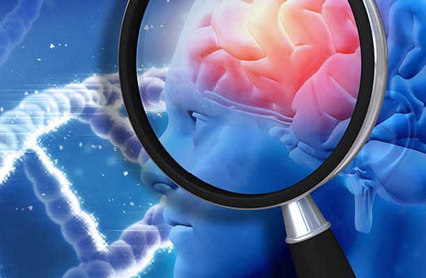 Estudo aponta que a área onde é produzida a dopamina pode ser responsável pelo surgimento do Alzheimer