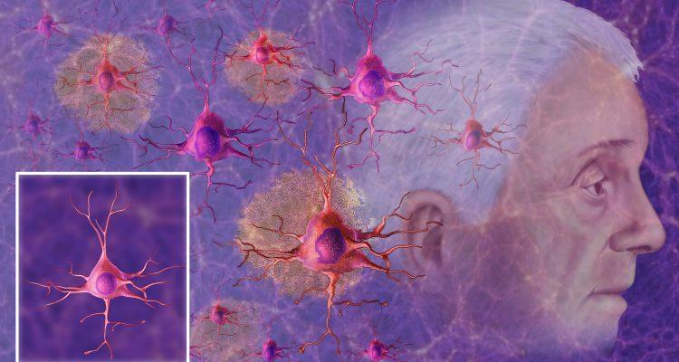 Biomarcadores na saliva podem identificar pacientes com maior risco de Alzheimer