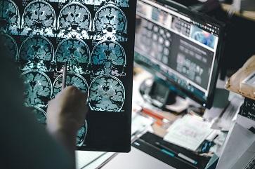 Exames de sangue simples seriam capazes de indicar maior risco de Alzheimer
