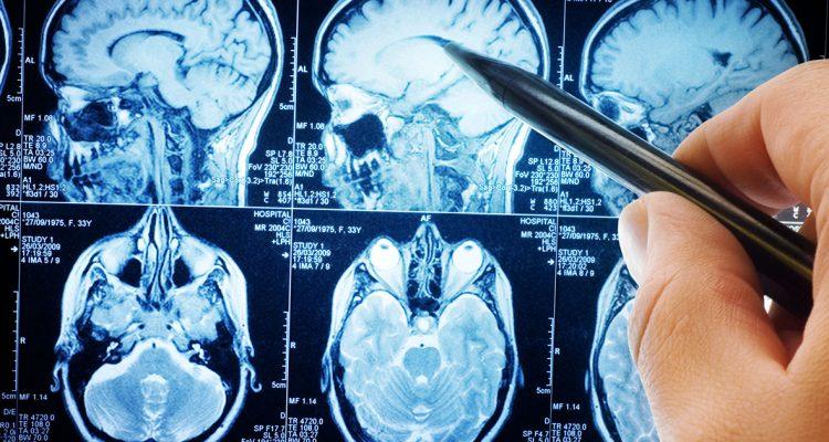 Tumores cerebrais (astrocitomas)