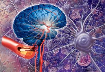 Causas, sintomas e tratamentos do aneurisma cerebral