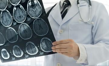 Distúrbios psiquiátricos e doenças neurológicas não têm mesma base genética, diz estudo
