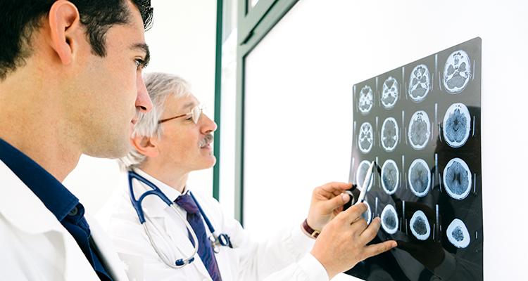 Cientistas desenvolvem exame de sangue que pode detectar Alzheimer com 16 anos de antecedência