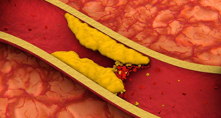 Trombectomia mecânica tem benefício comprovado no tratamento do AVC