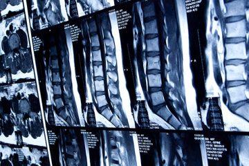 Coluna: Infecção em cirurgia