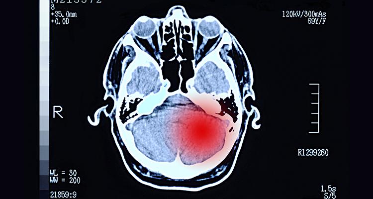 Tumor cerebral: Recidiva