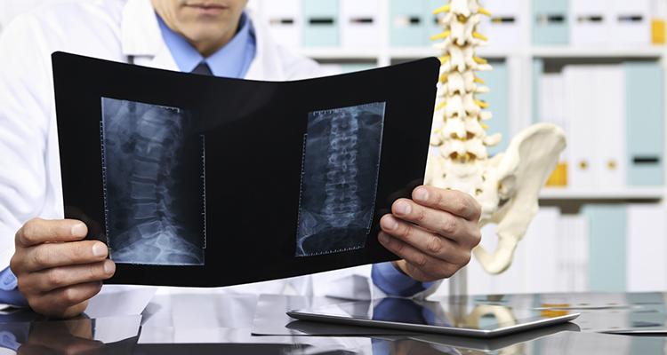 Dor na coluna constante pode ser resolvida com a ajuda da neurocirurgia