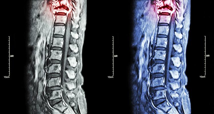 Cifoplastia ou Vertebroplastia – Injeção de Cimento Ósseo no corpo vertebral