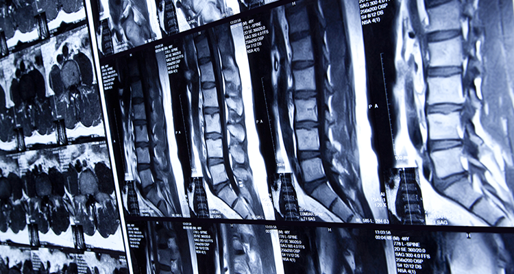 Medula ancorada – saiba o que é e tratamento