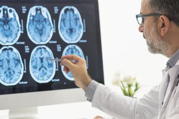 A importância do check-up anual para a saúde cerebral