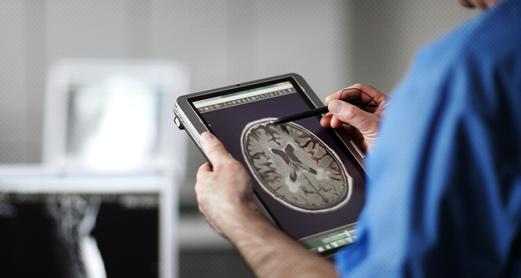 Os efeitos do Covid-19 no cérebro
