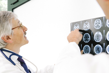 Estudo revela que pacientes com Alzheimer têm três vezes mais chances de desenvolver quadros graves de Covid-19